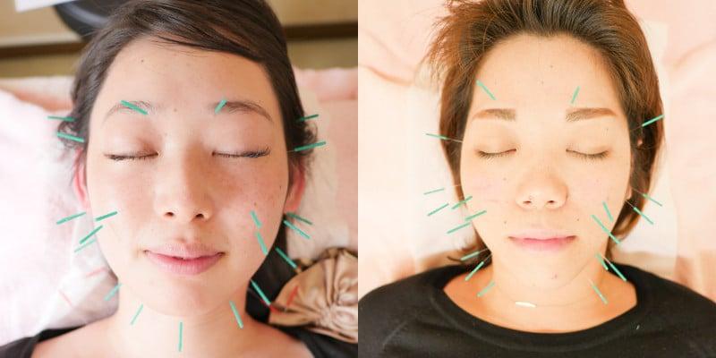 美容鍼灸顔の鍼