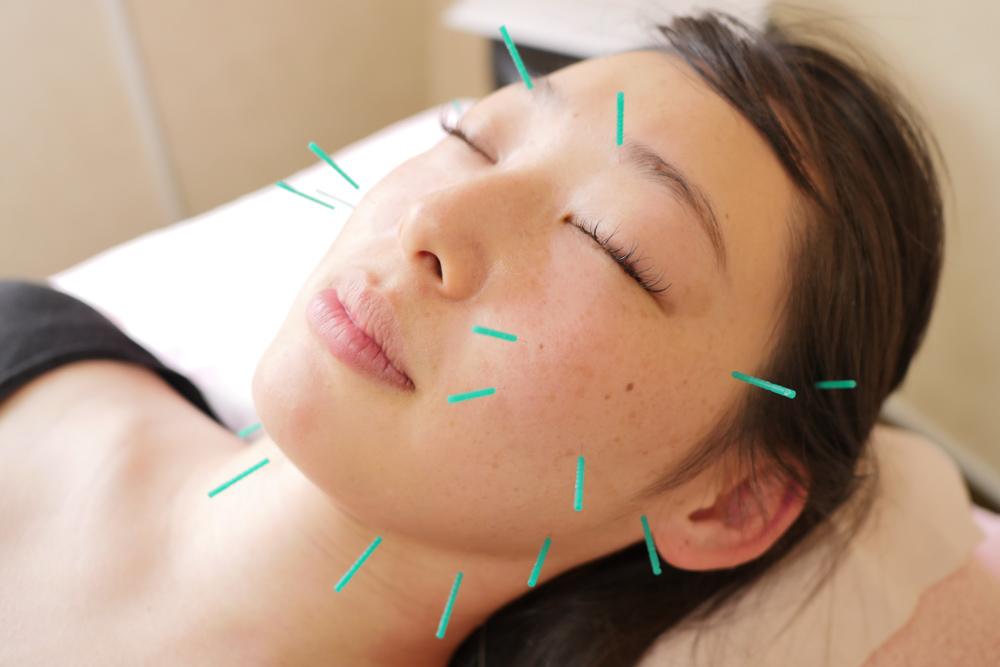 当院の美容鍼灸の特徴